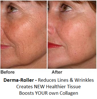 face roller for wrinkles