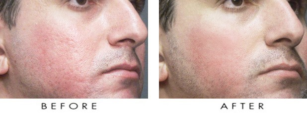 diamond dermabrasion before & after
